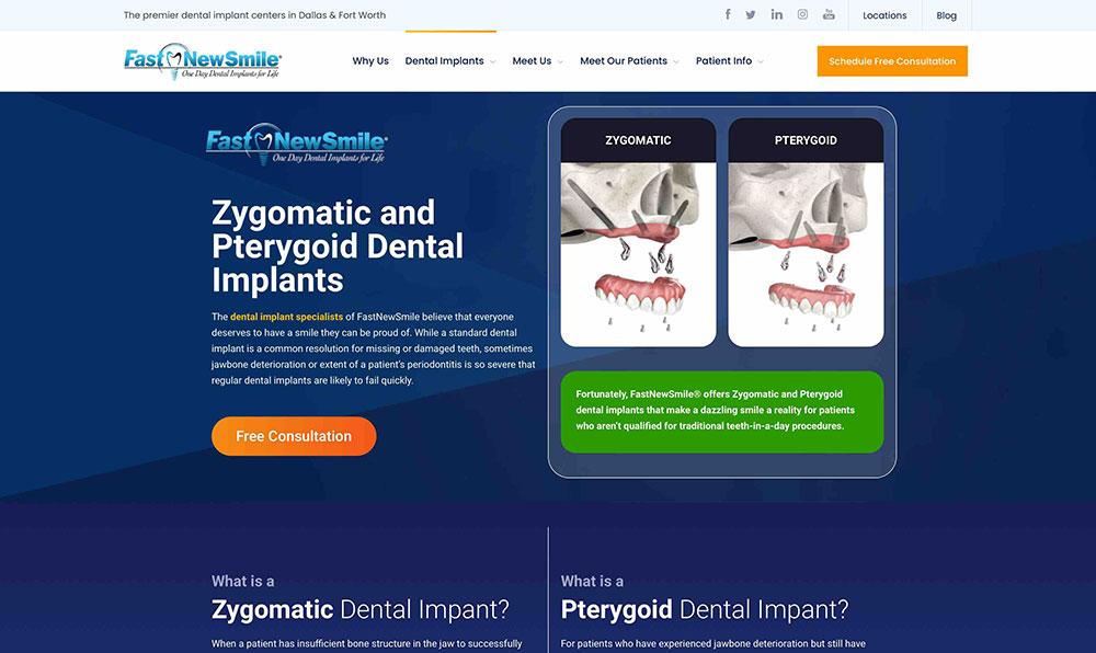 FastNewSmile® - Implants Page